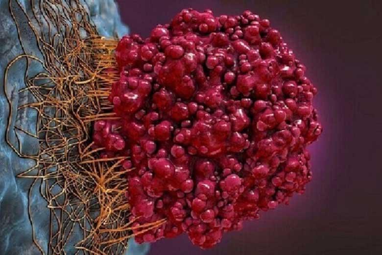 علائم سرطان روده چیست؟